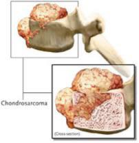 tumores-coluna2