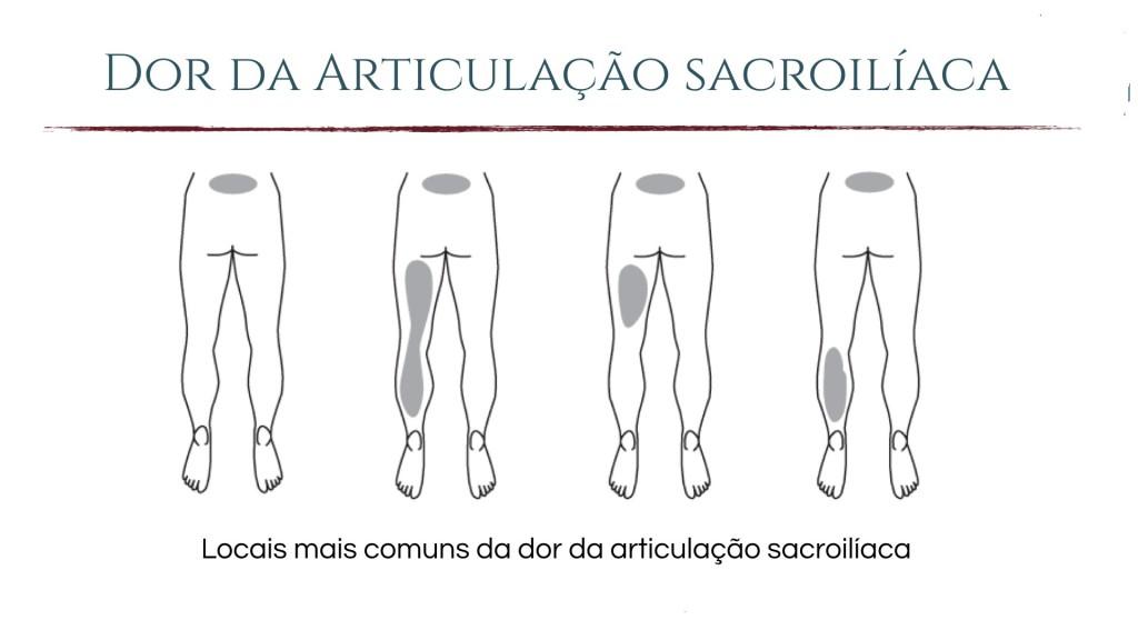 articulacao sacroilaca