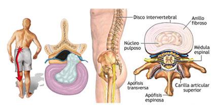 Musculação X hernia de disco