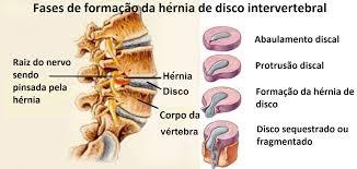 Tipos de Hernia de Disco