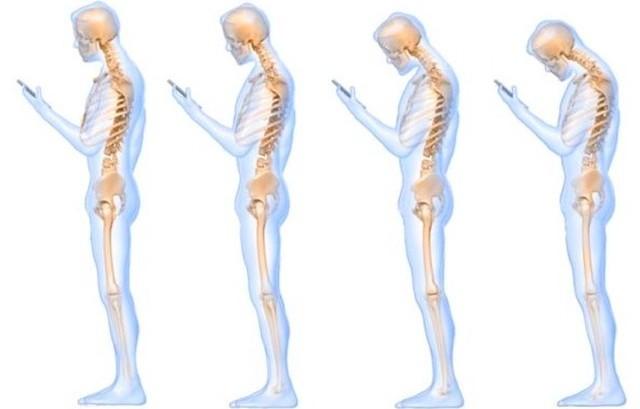 Cervicalgia e Smartphone
