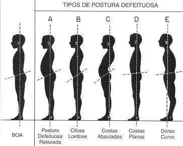 postura - artigo