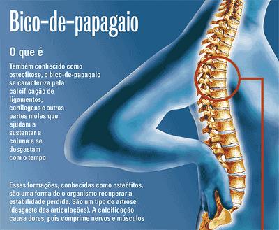 osteofitose 4