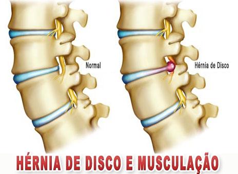 Exercício físico é bom para hernia de disco vertebral?  Depende…