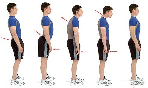 Desvio postural