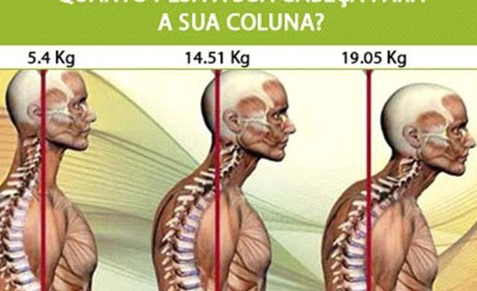 Corcunda na Coluna Cervica: Causas e Tratamento