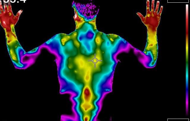 Termografia: uma  forma de ver e estudar a dor